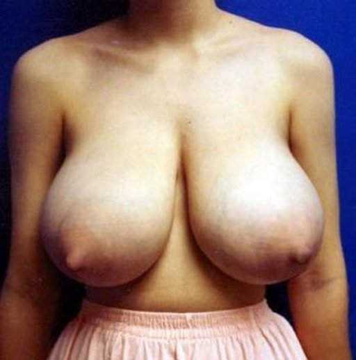her-breasts