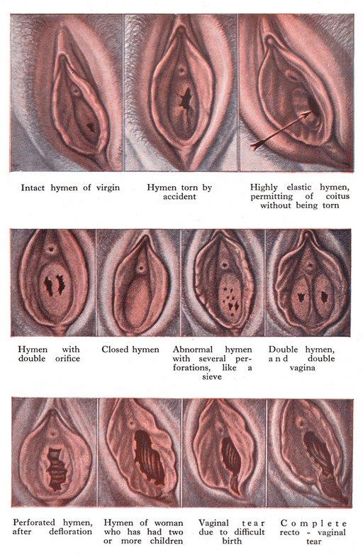 hymen taxonomy