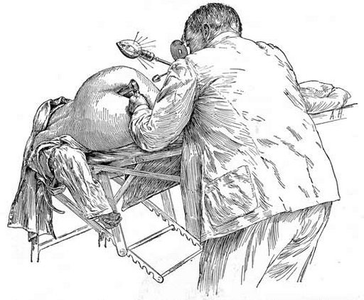 drawing from medical text of a woman getting a pelvic/vaginal exam with speculum while in the Sims position