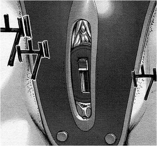 vibrator inside a chastity belt